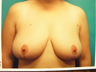 Dr. Serra Plastic Surgery Before & After
